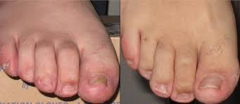 fungal nail infection how do you get it